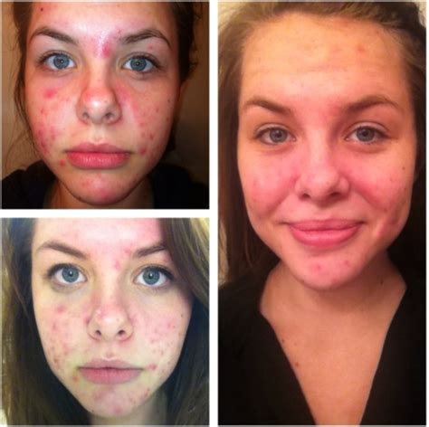 your last acne solution scribd picture 10