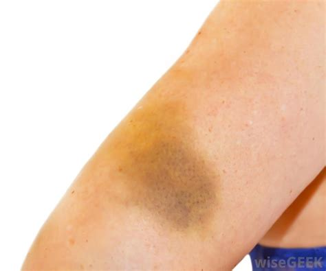 lump in forearm under skin picture 13