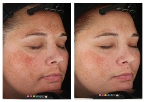 skin care for melasma picture 3
