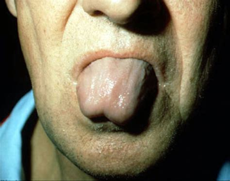herpes and fasciculations picture 9