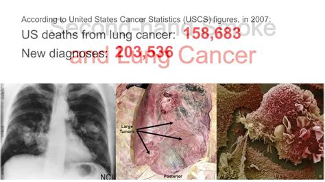lung cancer and second hand smoke picture 6