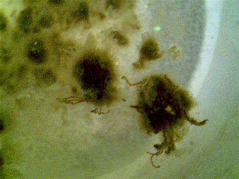 what herb clear of bacteria in the stomach picture 11
