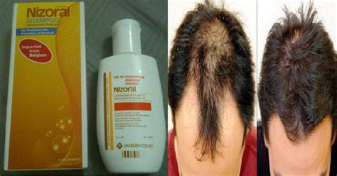treatment of hair loss ketoconazole picture 5