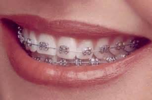 all cinds of teeth grizs gold and silver picture 11