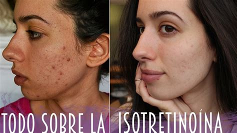 acutane for acne picture 6