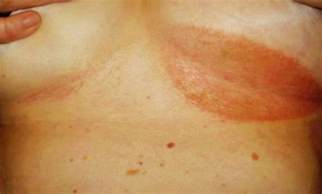 inflamed itch yeast infection relief picture 2