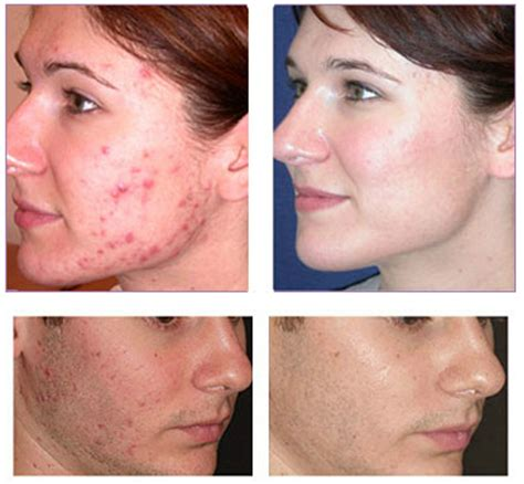 acne treatment laser picture 2
