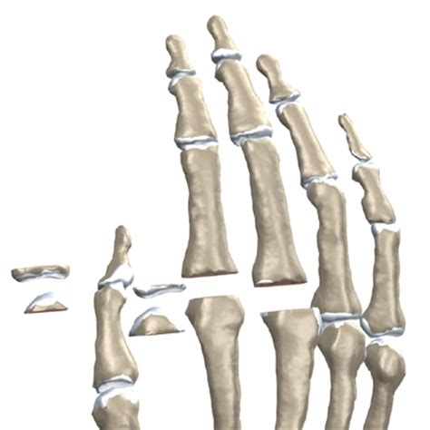 finger joint replacements picture 10