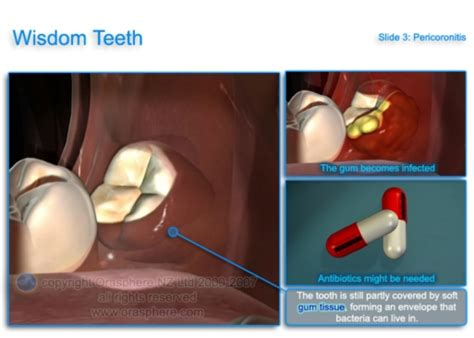 wisdom teeth removal picture 15