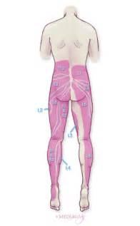facet degenerative joint disease picture 3