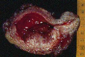 bladder cancer surgical procedures picture 7