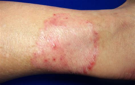 common skin infections irritations picture 9