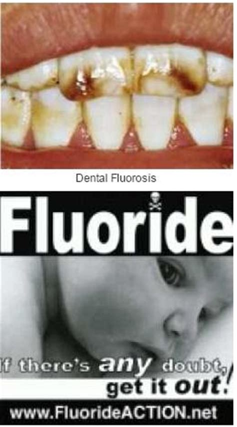 fluoride bad for h picture 10