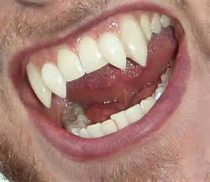 fang teeth picture 11