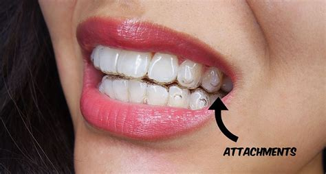 align of teeth after braces picture 3
