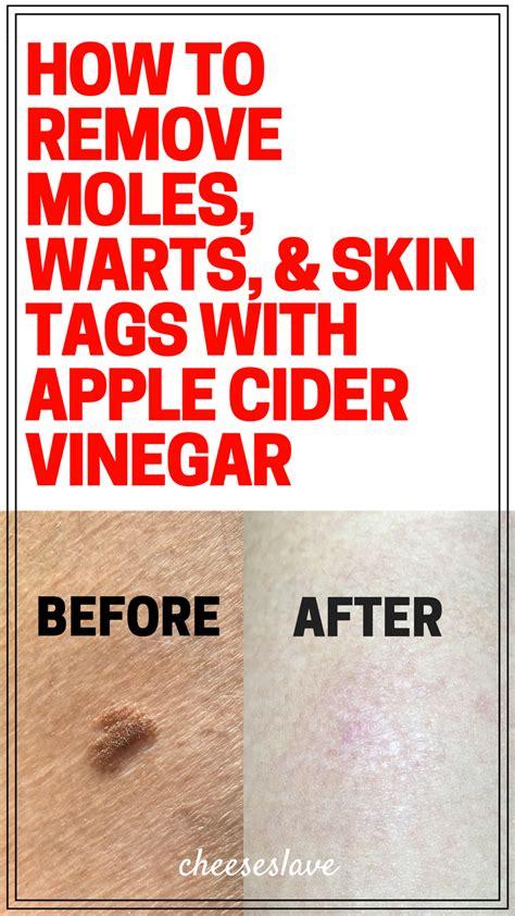 warts raw apple cider vinegar picture 10