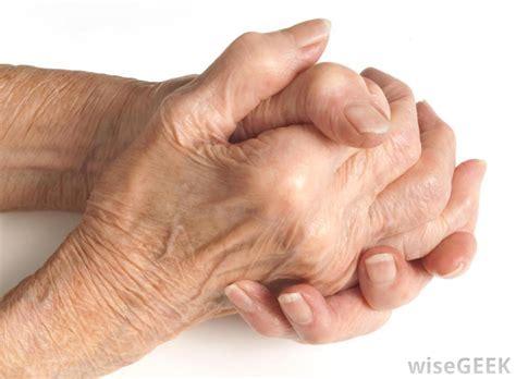 arthritis picture 18