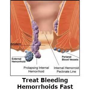 bleeding hemorrhoid treatment from gnc picture 9