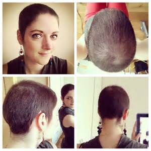 hair loss 6 months after chemo picture 2