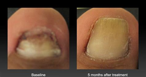 laser nail fungus treatment picture 2