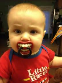 crooked teeth due to pacifier picture 6