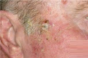 thuja treat actinic keratosis picture 15