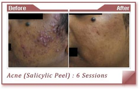 is glycolic acid ls good for acne scaring picture 3