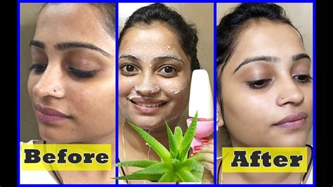 best skin care picture 1