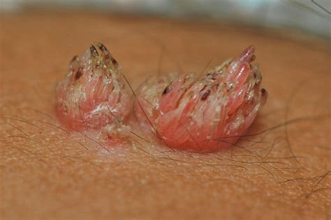anal wart picture 17