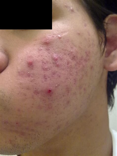 acne marks picture 5