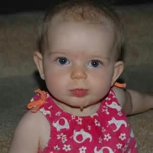 children liver hemangioma picture 13