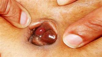 popping boils picture 1