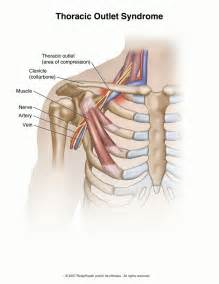 birth control and thoracic outlet syndrome picture 2