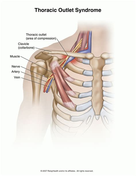 birth control and thoracic outlet syndrome picture 5