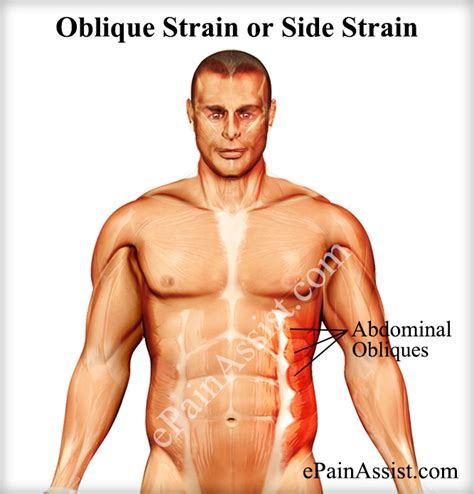 abdominal muscle pull picture 21