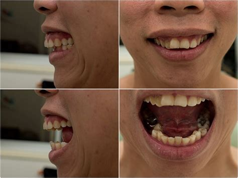 fix teeth picture 17