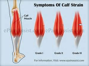 calf muscle pain picture 19