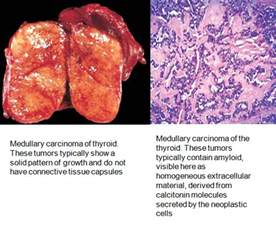 smoking and medullary thyroid cancer picture 18