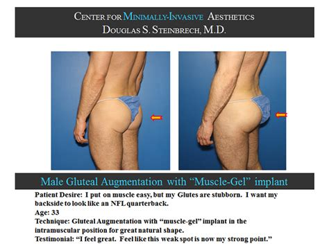 before and after glute pictures picture 1