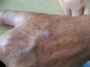 basal cell skin cancer picture 1