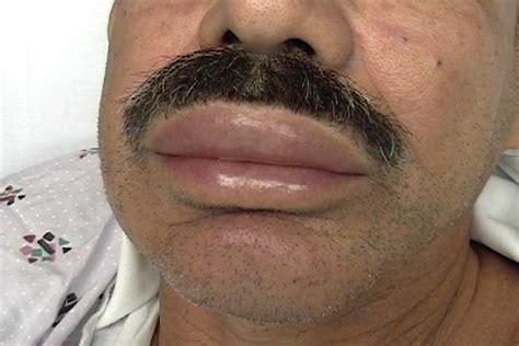 Food allergy lip swollen picture 11