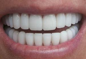flu teeth discoloration picture 7