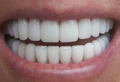 healthy teeth pictures picture 3