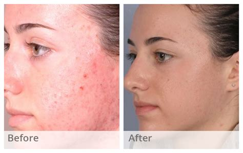 chemical pel acne treatment series picture 18