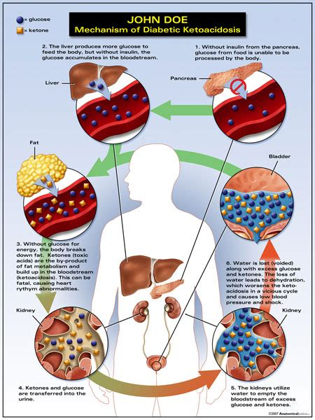diabetic ketoacidosis picture 2