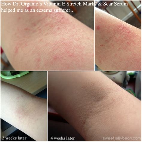 vitamin e on stretch marks picture 3