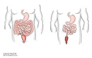 intestinal cancer picture 5