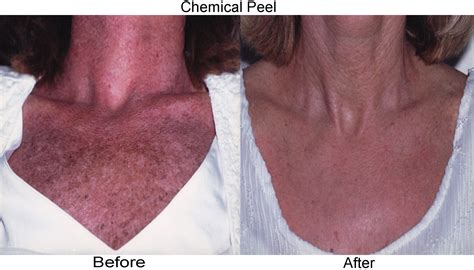 chest waxing acne picture 15