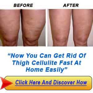 how to get rid of cellulite on thighs picture 2