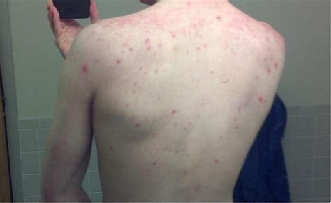 men back acne picture 3